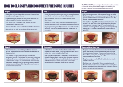 How to classify and document pressure injuries